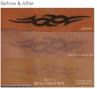 enlighten Tattoo Removal 2