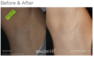 excel HR Hair Removal 2
