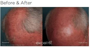 excel HR Hair Removal 3